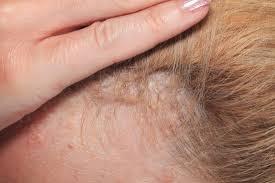 symptoms scalp psoriasis