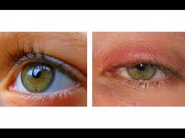 HOW TO CURE AN EYE INFECTION IN 24 HOURS! - YouTube