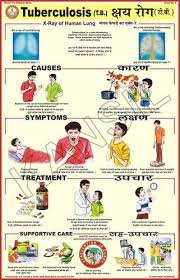 Tuberculosis For Prevent Diseases Chart