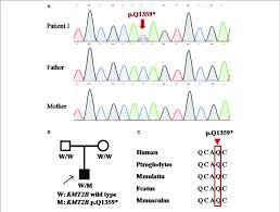 Dog Dna Chart Detection Of Kmt2b Nonsense Mutation P Q1359 In Patient 1