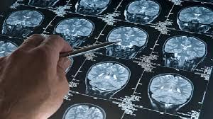 العلماء يتقدمون خطوة هامة نحو علاج مرض فقدان الذاكرة المدمر - RT Arabic