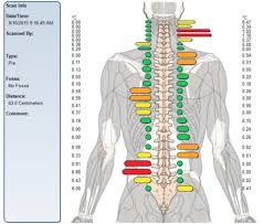 Chiro Chart Key West Chiropractic Chiropractor In Key West Fl 33040