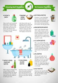 top 10 baths solutions for eczema