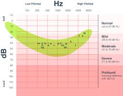 Hearing Banana Chart What An Audiogram Says About Your Hearing Loss The Hearing