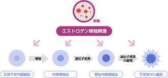 子宮 内 膜 増殖 症 症状