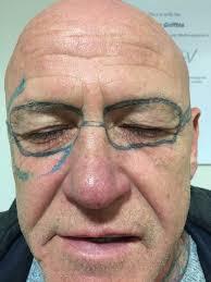 мужчина решил избавиться от татуировки в виде очков на своём лице