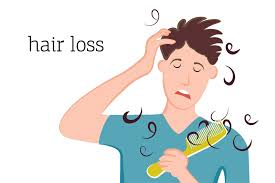 more young people suffer from hair loss