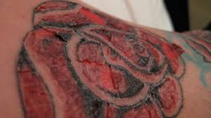 Tattoo Release Form Interesting Tattoo Infection Symptoms And Treatment