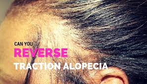 Image result for traction alopecia