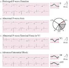 Frontiers | P Wave Indices—Advancing Our Understanding of Atrial  Fibrillation-Related Cardiovascular Outcomes