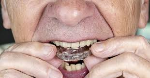 bite guards can aid teeth grinding but