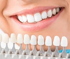 Fresno Teeth Whitening Cosmetic Dentist Byron Reintjes Dds