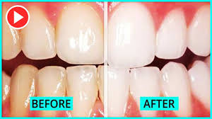 how to get your teeth whiter in 5 minutes without baking soda smile makeover