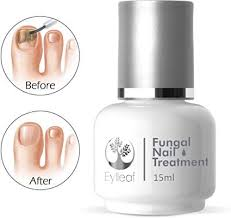 Fungal Nail Treatment by Eylleaf - Fungus Remover light Gel for Toenail  Infection, Helps Clear and Recover Nail Plate 15ml: Amazon.co.uk: Beauty