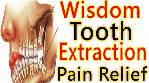 wisdom tooth extraction pain how to deal with wisdom teeth removal pain wisdom teeth surgery pain