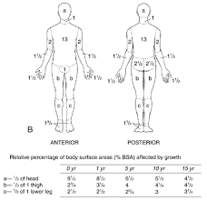 Rule Of 9 S For Burns Chart Total Body Surface Area Walker Morgan