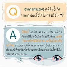 รัฐบาลไทย-ข่าวทำเนียบรัฐบาล-อาการตาแดงอาจมีสิทธิ์เกิดจากการติดเชื้อโควิด-19  หรือไม่ ??