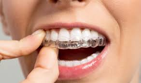 Can You Fix An Overbite With Invisalign Fine Orthodontics