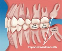 Typical cost ranges for wisdom tooth removal the cost of the surgery depends on how complex the tooth removal is. Wisdom Teeth Removal Phoenix Tempe Scottsdale Az
