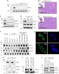 Translation Vs Transcription Venn Diagram The Transcription Factor Cbfb Suppresses Breast Cancer