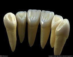 teeth extraction for braces จ ดฟ นแบบต องถอนฟ น
