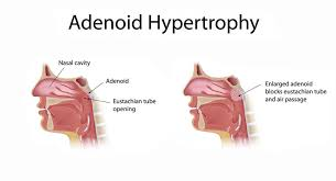 The Adenoid And Adenoidectomy Ent Clinic