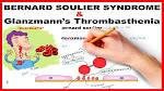 glanzmann's thrombasthenia