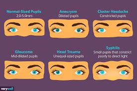 Pupil Size Chart Printable Pupil Gauge Chart Printable Drug Pupil Dilation Pupils Chart