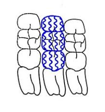 Dental Charting Flashcards Cram Com