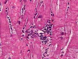 Reperfusion (associated with myocardial infarction). Histopathology Of Myocarditis Diagnostic Histopathology
