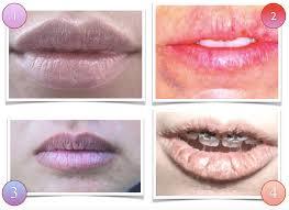 tcm diagnosis lips observation