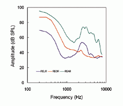 Ampclusion Management 103 High Frequency Hearing Loss