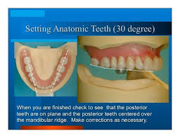 teeth setting image085 jpg