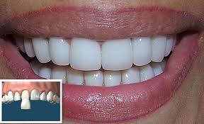carillas dentales carillas dentales 2 000 00 en mercado libre