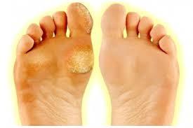 Exfoliační Ponožky Pro Jemnou Pokožku Nohou Slevnujcz Zlatéslevycz