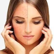 Resultado de imagen para Remedios para la rosácea, cuperosis o enrojecimiento facial