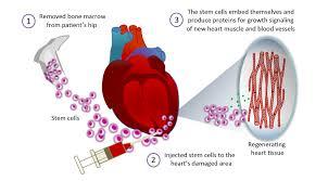 >< applications of stem cells in medicine the story of stem cells chapter 3 fig 3 3 stem