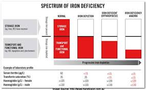 Iron Deficiency Anemia Chart Iron Metabolism Part I Sources Transport Testing