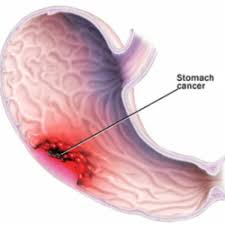 Stomach Cancer and Your Risk Factors - Digestive Health Specialists P.A