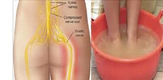 pain relief for nerve pain in leg