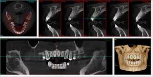 Dental Radiography Wikipedia