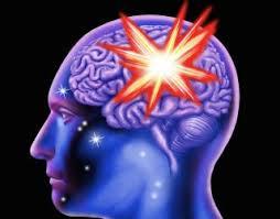Brain Hemorrhage Causes Symptoms Treatment Live Science