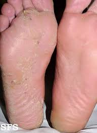 Itchy Feet and Toes | Current Health Advice, Health Blog Articles ...
