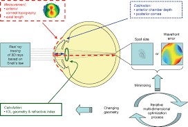 schematic view of the individual virtual eye the anterior corneal surface and the axial length