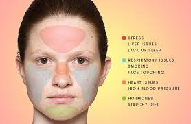 Acne Placement Chart Acne Face Chart Gallery Of Chart 2019