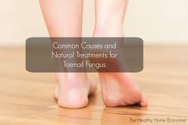 toenail fungus causes and cures