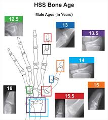 Bone Age Wrist Chart A New Validated Shorthand Method For Determining Bone Age
