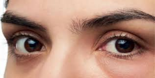 get swollen eyes in the morning causes