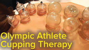 chinese cupping therapy michael phelps olympics bruise mystery solved pain relief and therapy you