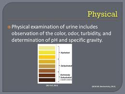Urine Turbidity Chart Urinalysis By Adelle Heidi Urinalysis By Adelle And Heidi